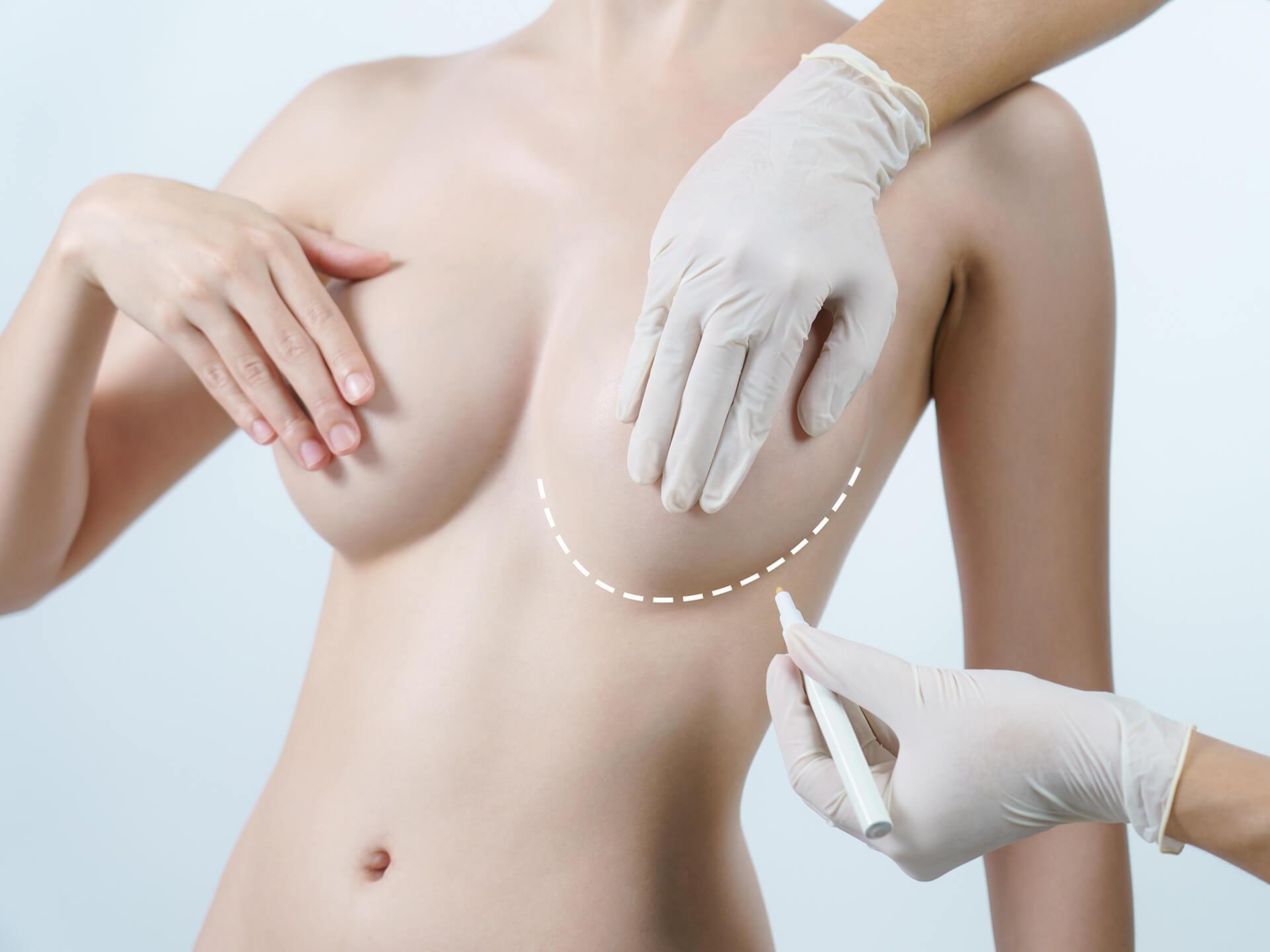 Aumento de pecho en Granada con Salus Medical Clinic